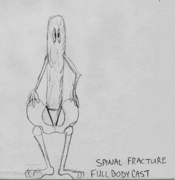 spinal-fracture-sketch